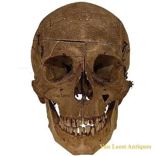 Prepared Human Skull by Tramond a Paris