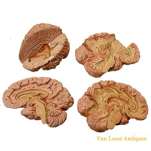 4 Human Brain models by. T. D. Schubärt,1847
