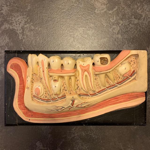 Italian teaching model of the teeth, papier mache, late 1800's