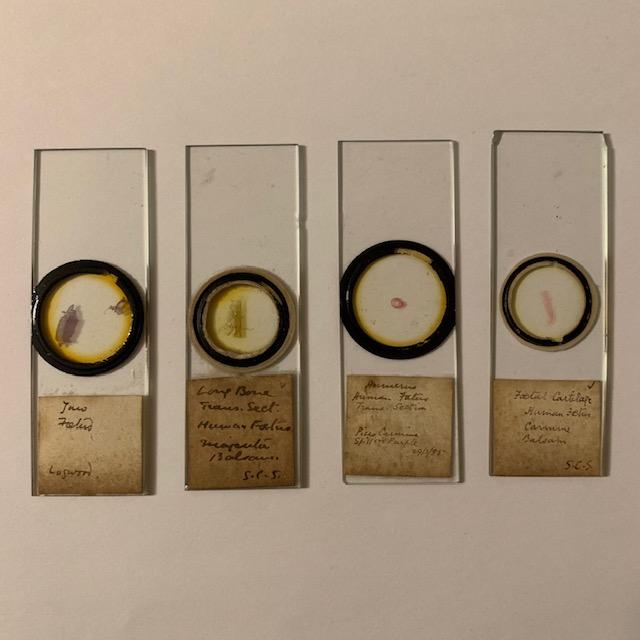 4 antique microscope slides, Human fetus, late 1800's