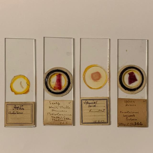 4 antique microscope slides, human specimen – aorta, scalp,., late 1800's