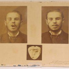 Original photos of facial surgery or odontology by Daniel Beauregard, 1880