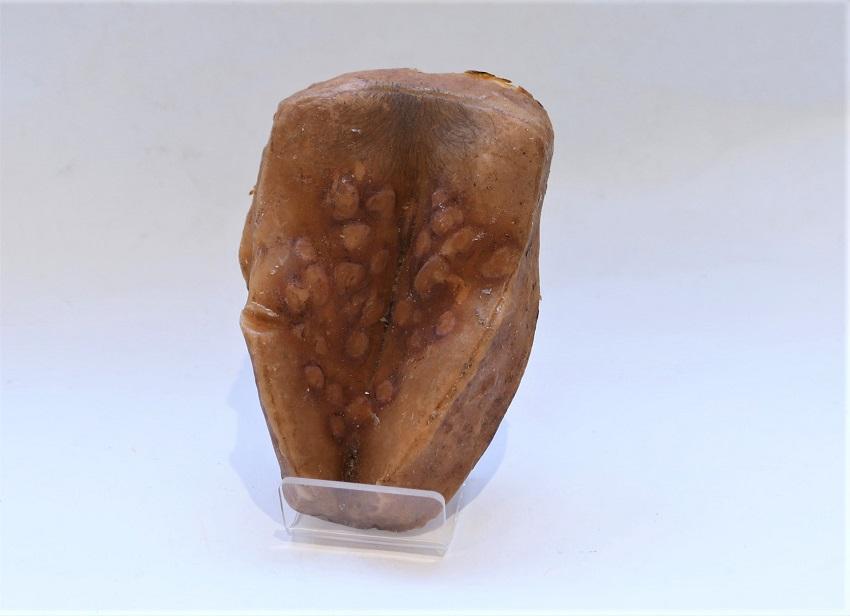 A wax anatomical model of pathological vagina, 20th century